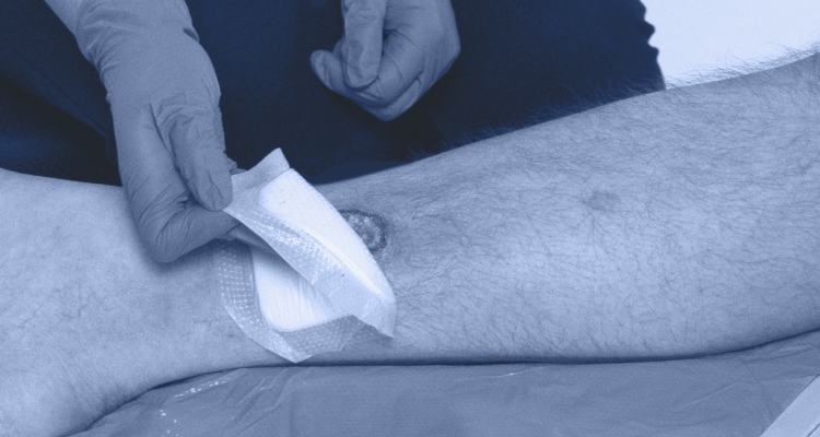 Clinician bandaging a patient's wound